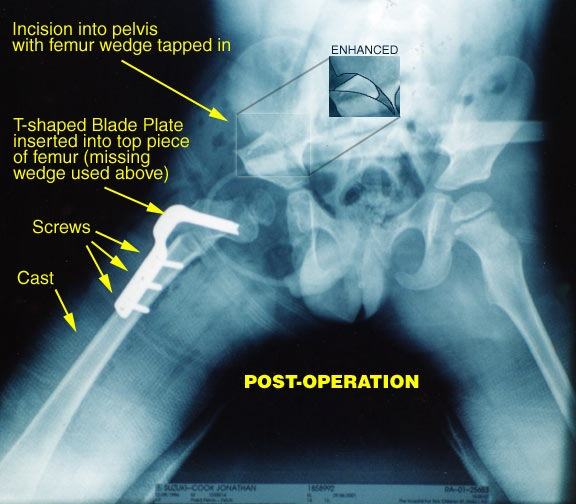 Hip x-ray after operation at 5 years old
